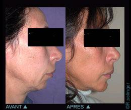 Mauvaise chirurgie plastique du visage
