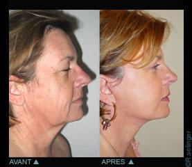 Clymer chirurgie plastique du visage
